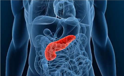Pancreatic Cancer